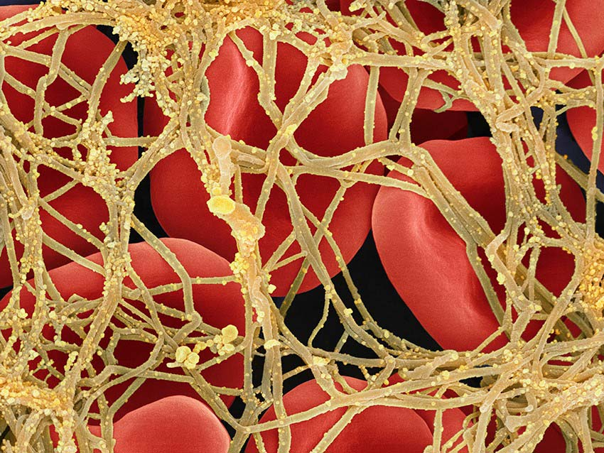 A blood clot and activated platelets