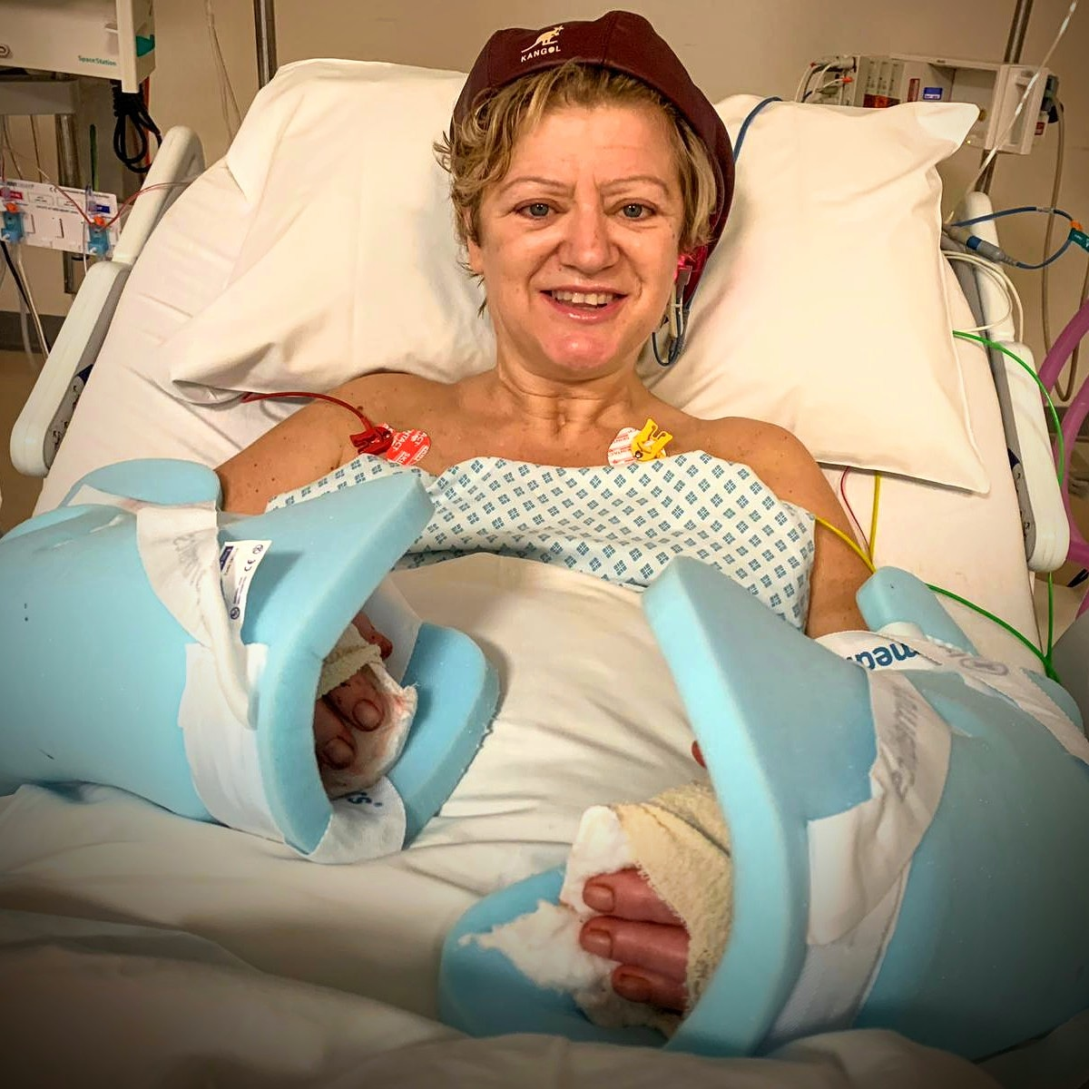 Corinne Hutton in hospital, after her operation