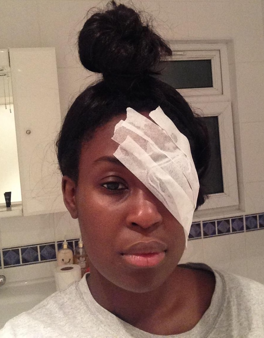 Adwoa, with a bandaged eye, post-transplant