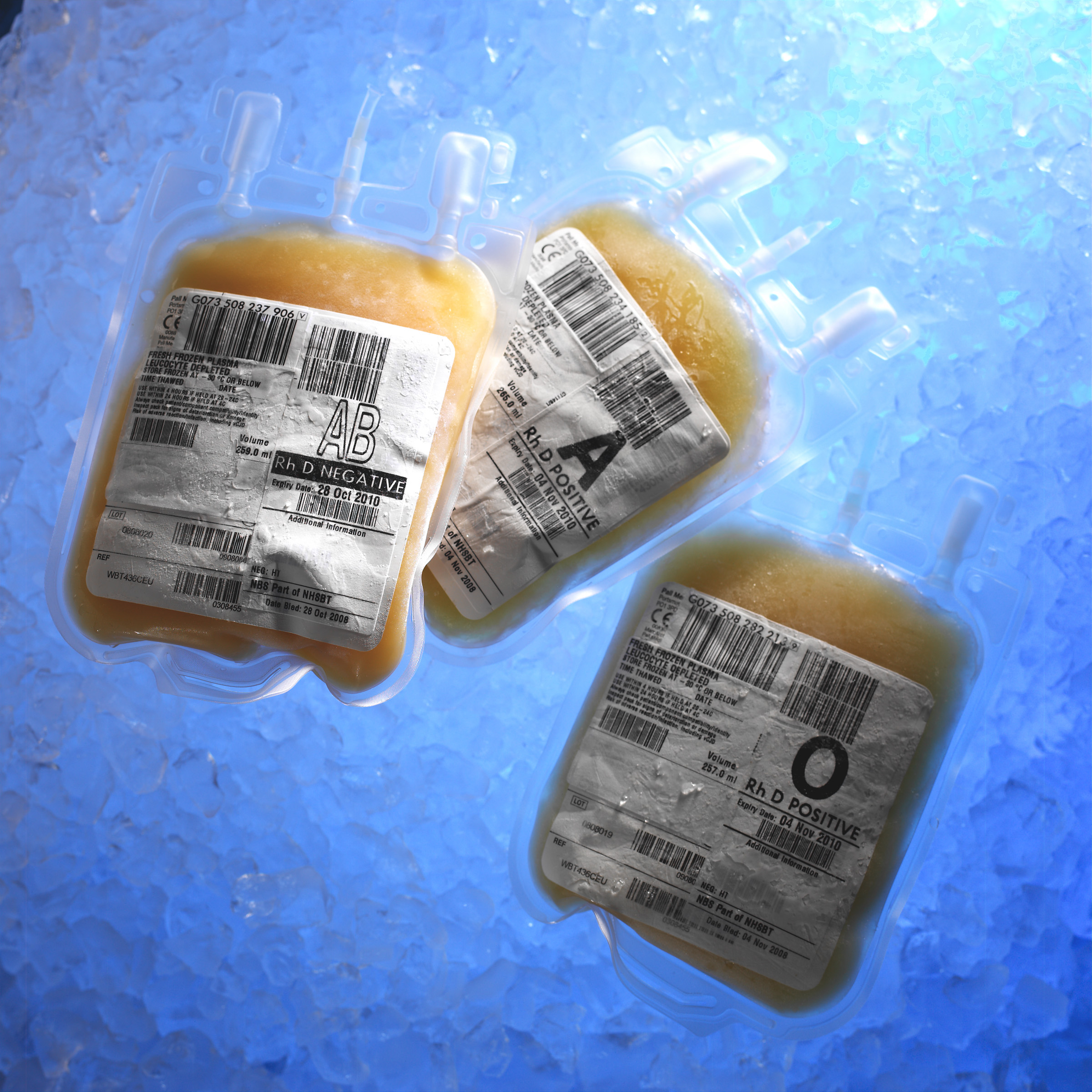 Three bags of fresh frozen plasma thawing before transfusion