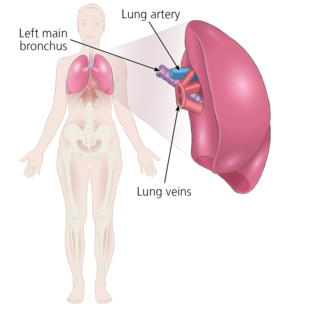Illustration showing how a donated left lung would connect to a patient via the lung artery, left main bronchus and lung veins