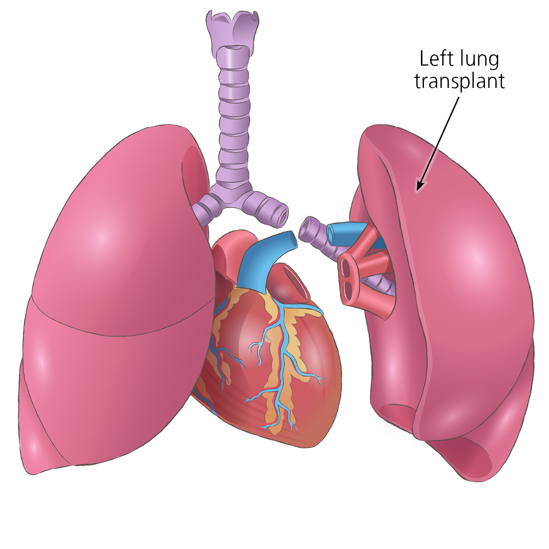 Close up of a transplanted left lung showing the different connection points. These are the left main bronchus, lung artery and lung veins.