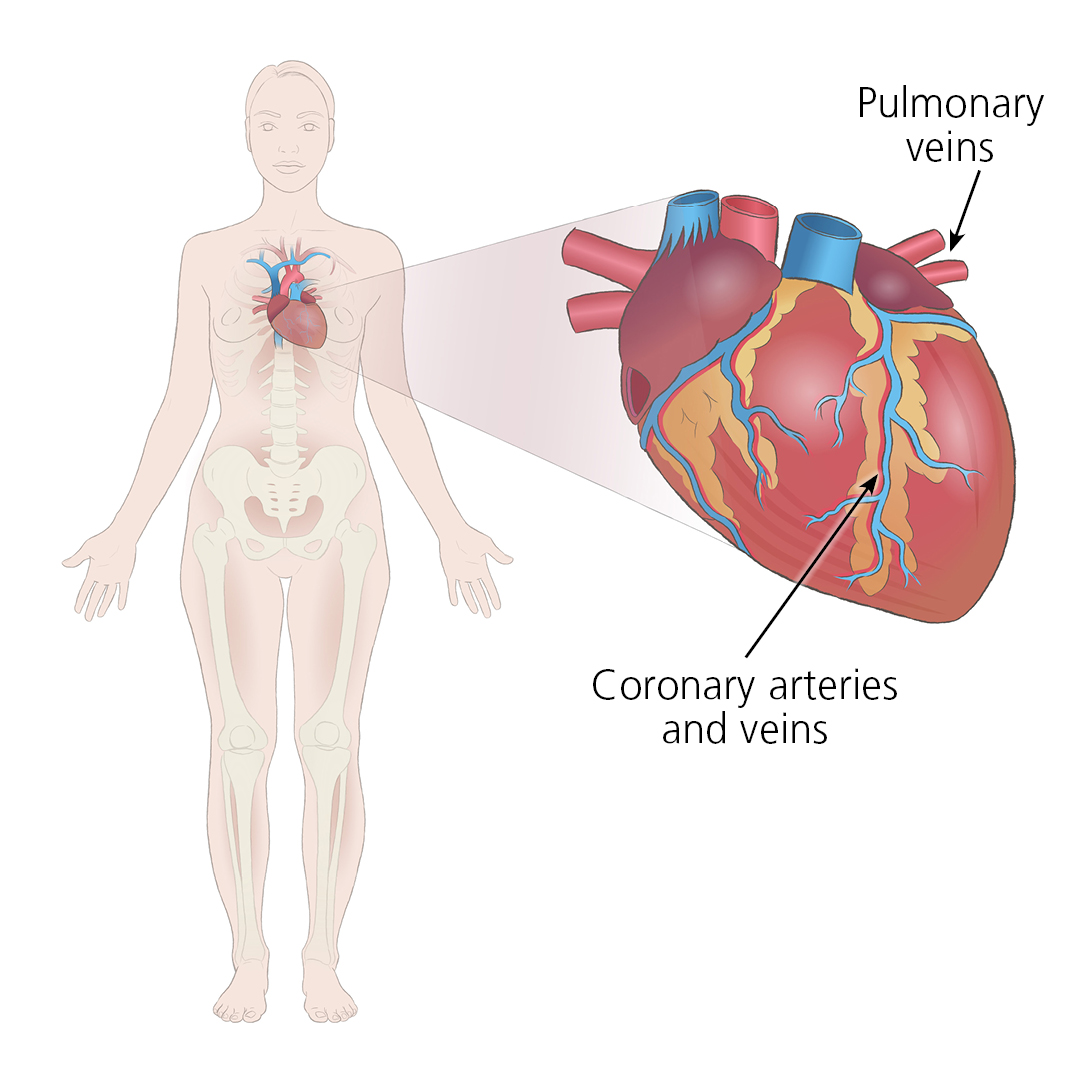 Illustration showing how a donated heart connects to a recipient via the pulmonary veins and coronary arteries and veins