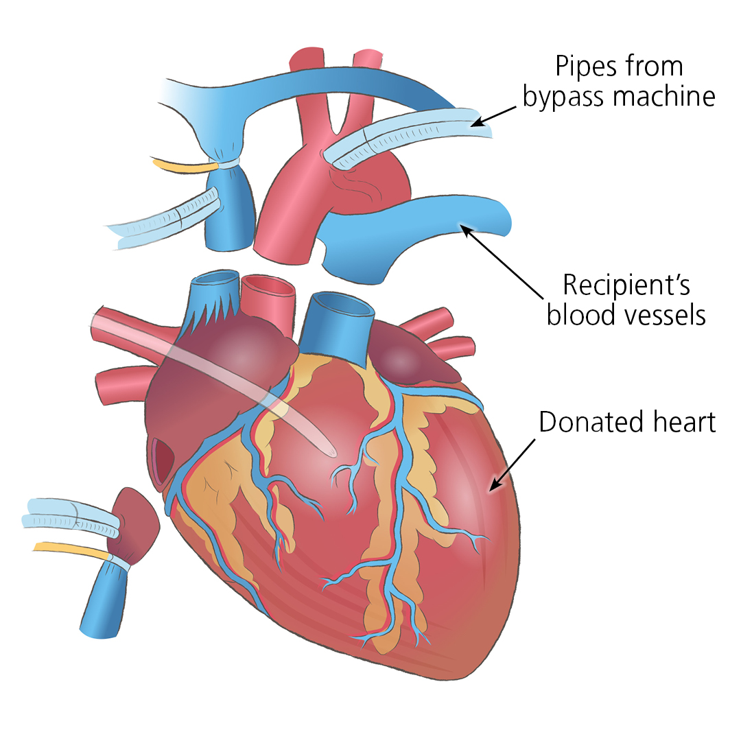 Close up illustration of a donated heart, showing how it would join to the recipient along blood vessels, and where the pipes from a bypass machine would go