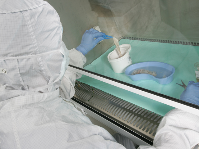 Tissue processing_Speke_Tissue Bank